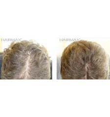 HairMax - professional laser haircomb 12
